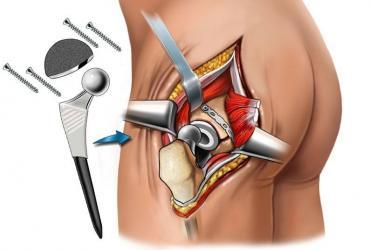 Отзывы эндопротезирования тазобедренного сустава антибиотик при восполении сустава